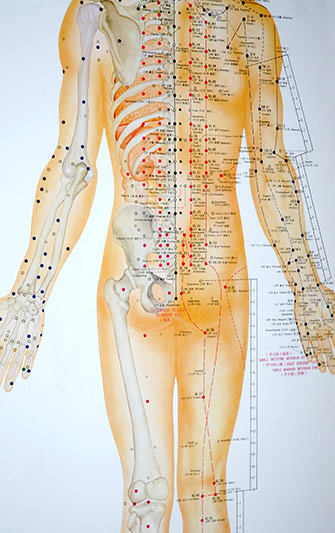 Wheaton Acupuncture Chinese Medicine | Joliet Naperville ...