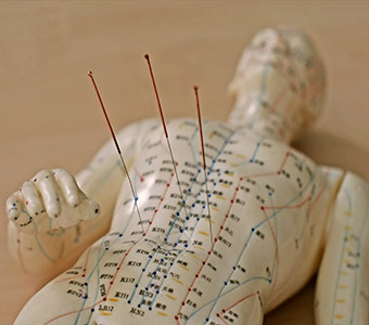Eastern Healing acupuncture services.jpg